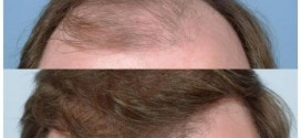 The success rate of hair transplant